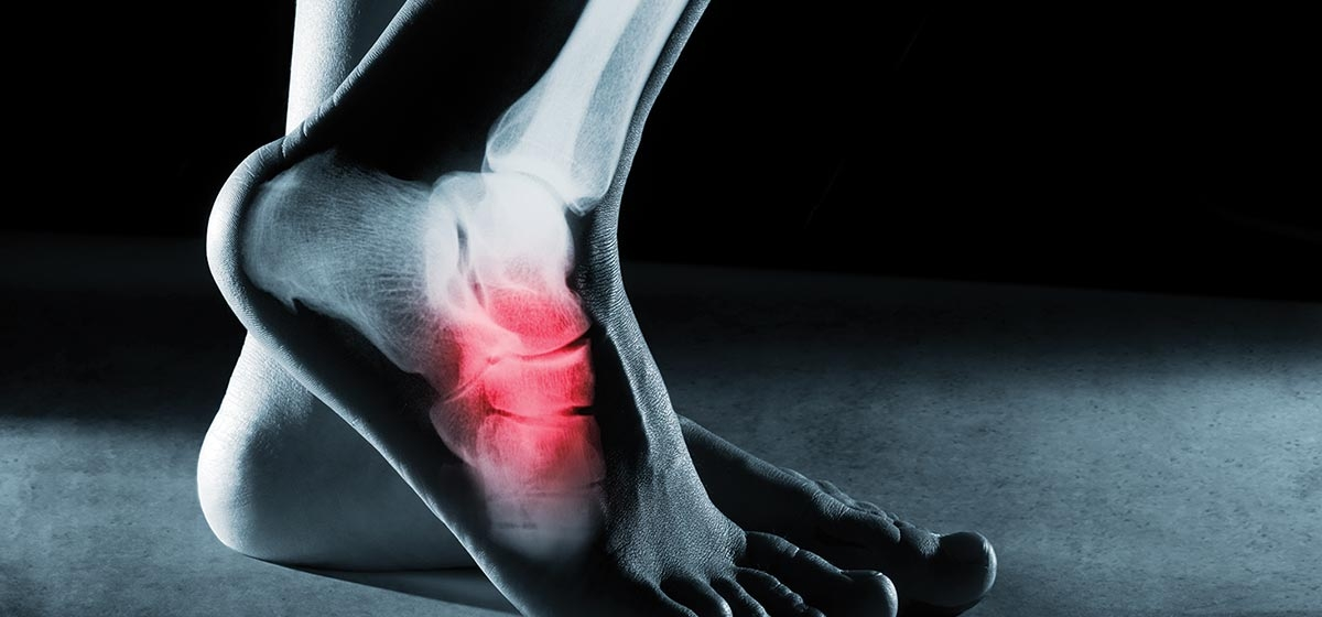 Ankle Joint Replacements on the Rise